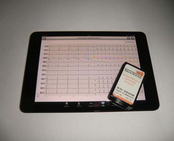 ECG on iPad