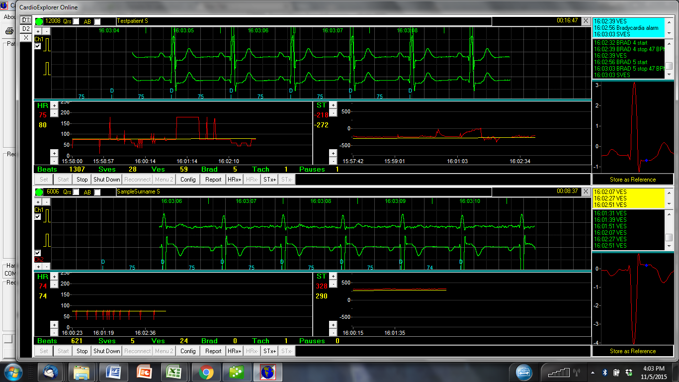 How Much Is A Transmission >> ICU Telemetry – Dextronix